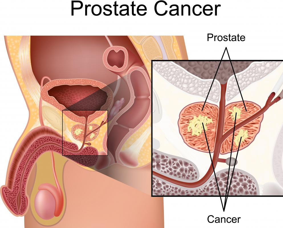 Flavones are thought to reduce the risk of prostate cancer in men.
